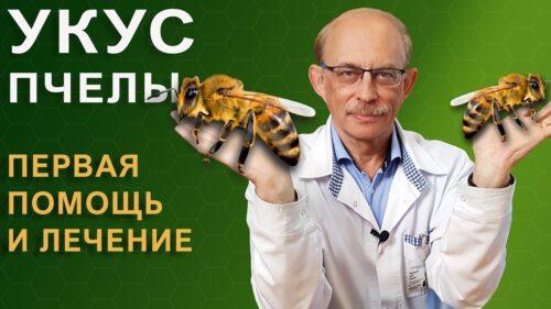 Укус пчелы - симптомы и первая помощь при укусах